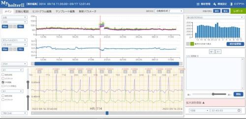 ホルター心電図の解析プログラム「マイホルターII」の画面イメージ